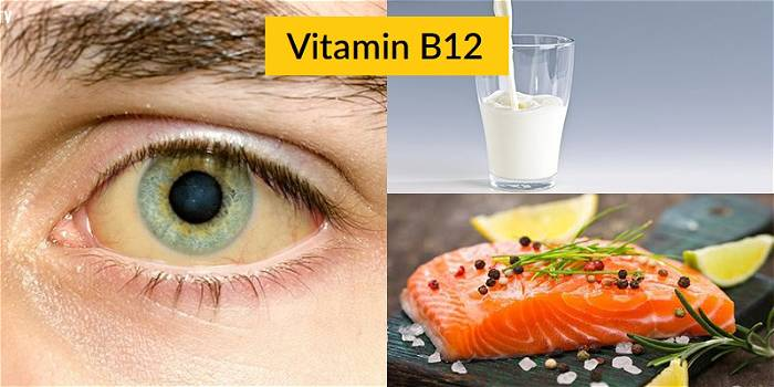Triệu chứng nguy hiểm khi thiếu Vitamin B12