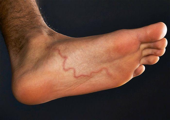 Các bệnh về da khi nhiễm Ký sinh trùng