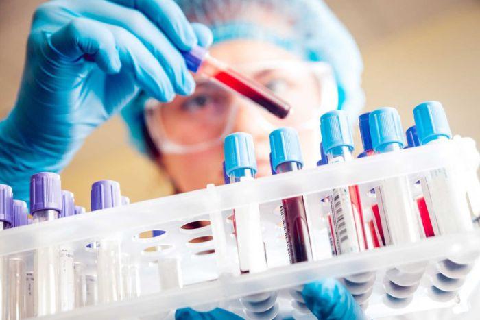 Các xét nghiệm sốt xuất huyết bạn cần biết