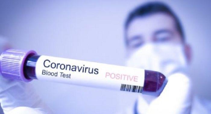 Cách xác định một người có nhiễm nCoV?