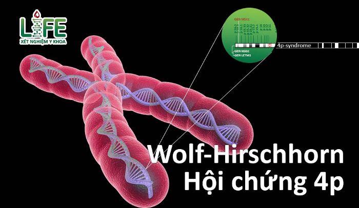 Nguyên nhân dẫn đến bệnh Wolf – Hirschhorn