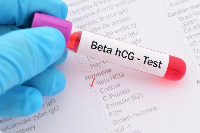 Phương pháp xét nghiệm Beta HCG