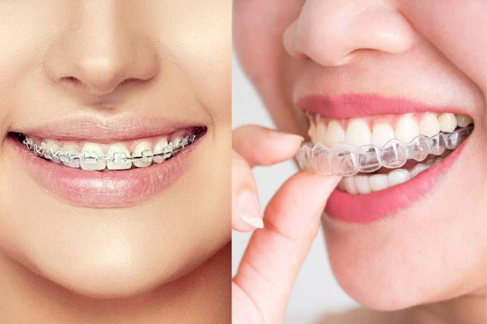 niềng răng giúp nụ cười rạng rỡ, thu hút hơn